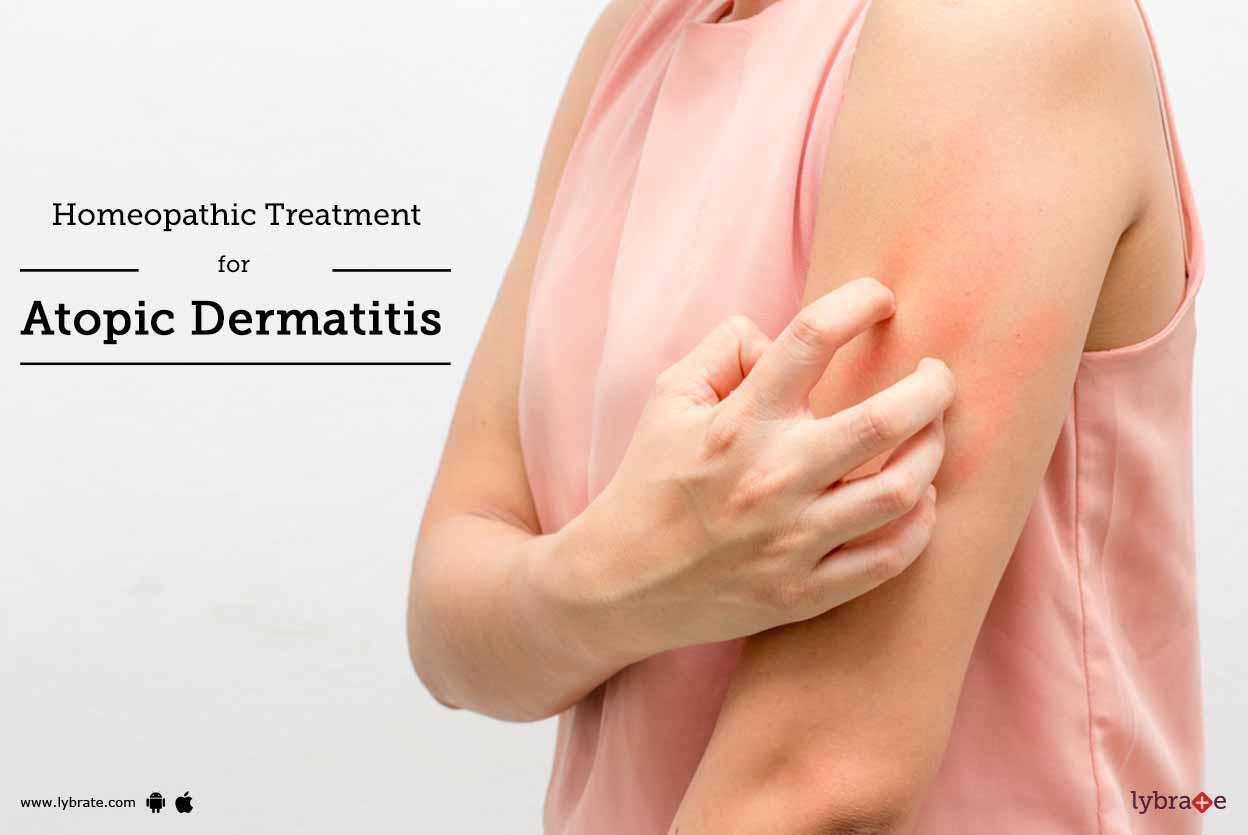 Dermatitis Atopik, Gejala, Penyebab & Pengobatan