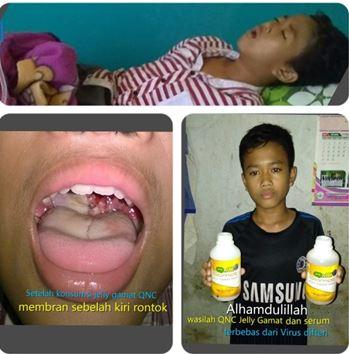 Cara Menyembuhkan Difteri Pada Anak Dengan Cepat & Mudah