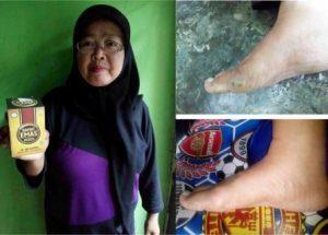Obat Limfadenopati Di Apotik / Apotek 100% Ampuh Tanpa Operasi