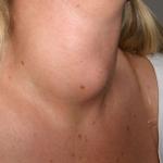 Penyakit Tiroid, Antara Gangguan Hipotiroidisme & Hipertiroidisme