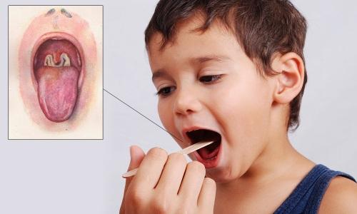 Kenali 8 Gejala & Ciri Penyakit Difteri Pada Anak Anda Lebih Awal
