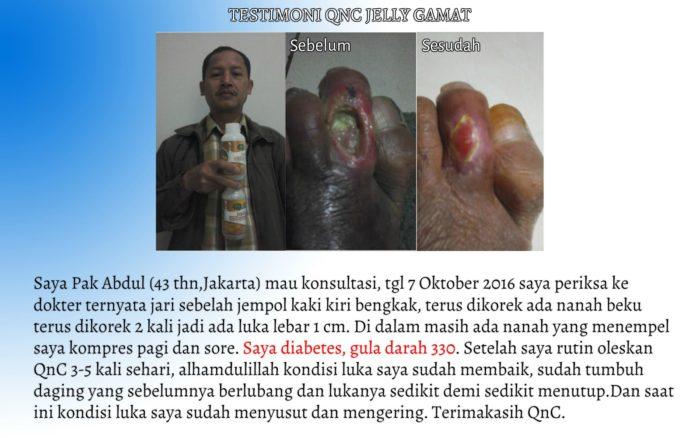 Testimoni QnC Jelly Gamat Untuk Luka Kaki Diabetes